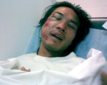 Ngọc Hùng với tình trạng chấn thương nặng ở mặt tại bệnh viện. Ảnh: CTV.