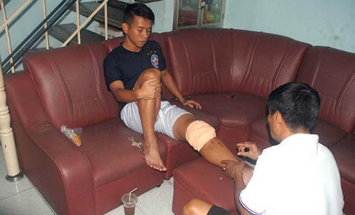 Cầu thủ dính pha vào bóng của Ngọc Hải bị thương nghiêm trọng