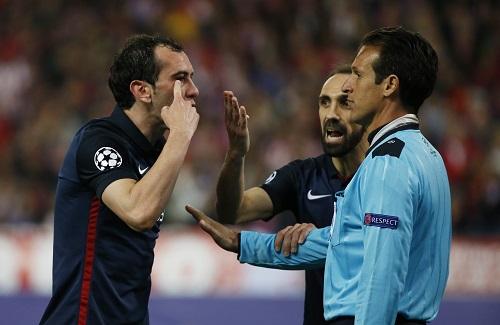 Cầu thủ Atletico bị Suarez đánh bầm mắt