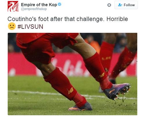 CĐV Liverpool đau lòng vì chấn thương của Coutinho