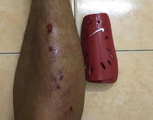 Cầu thủ Hải Phòng sợ đến mất ngủ khi bị vào bóng bằng hai chân