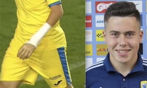 Cầu thủ tuổi teen đeo tay giả thi đấu chuyên nghiệp