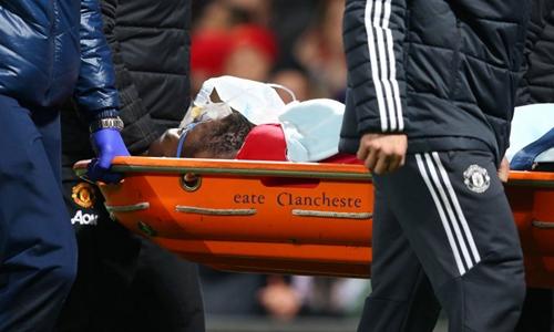 Lukaku không bị chấn thương nặng. Ảnh: PA.