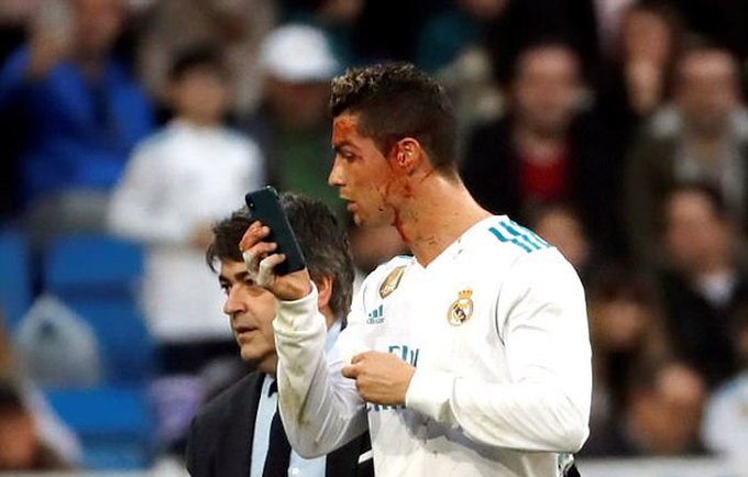 Ronaldo chảy máu đầm đìa trên mặt sau pha ghi bàn