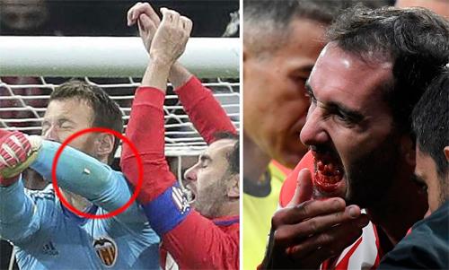 Godin rụng răng vì cú va chạm.