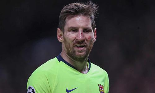 Messi phải đổ máu để mang về chiến thắng cho Barca. Ảnh:BPI.