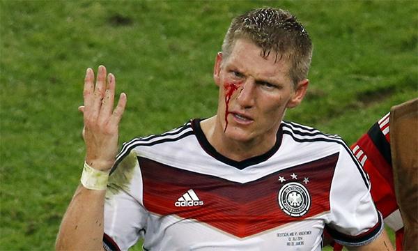 Chiến đấu với khuôn mặt đầm đìa máu trong trận chung kết World Cup 2014 là hình ảnh gây ấn tượng mạnh nhất về khí chất Đức và sự mạnh mẽ của Schweinsteiger. Ảnh: Reuters.