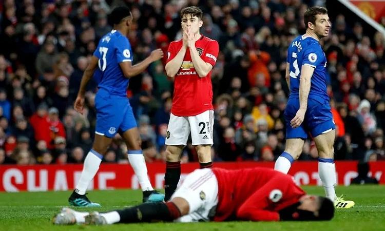 James ôm mặt tiếc nuối khi cú sút của anh trúng mặt đồng đội Lingard thay vì đi về phía khung thành Everton. Ảnh: PA.