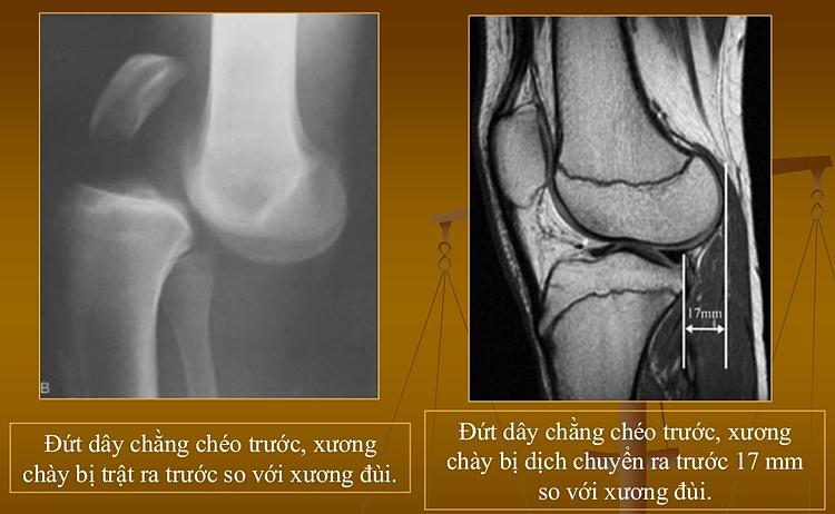 Chấn thương ACL xuất phát từtrật khớp gối. Ảnh: Bs. Nguyễn Quang Trọng.